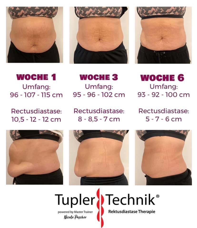 Tupler Technik, Anja Pohl, Tupler Halle, Erfolge Tuple